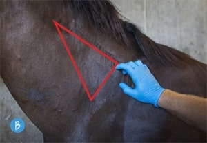 Image for 9 Steps for Giving Intramuscular Injections