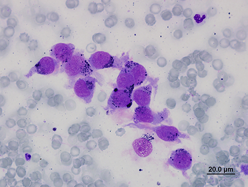 Melanoma cancer cytology in a dog